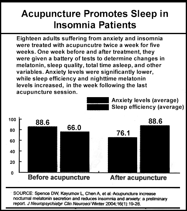 acupuncture insomnia