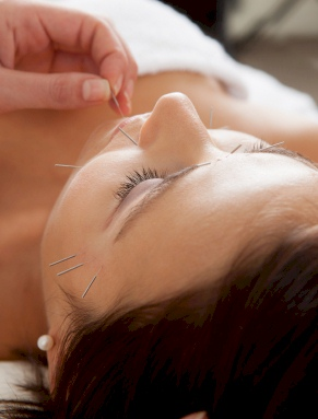 Facial rejuvenation acupuncture pricing annapolis